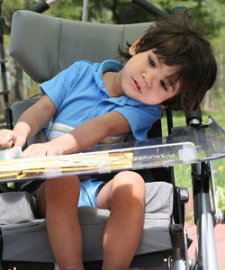 Image of child with cerebral palsy caused by birth injury