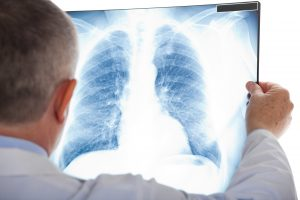 Image of lung x-ray showing cancer